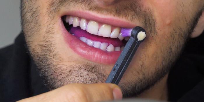 How to maintain healthy teeth
